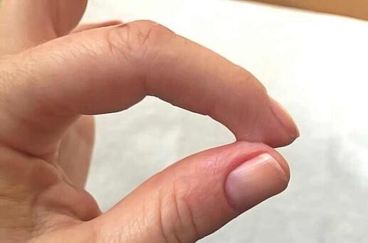 colle-doigt-peau-super-glue